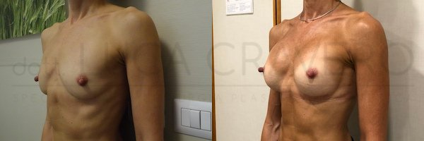 Mastoplastica additiva retromuscolare con protesi anatomica 265 cc in poliuretano. 2