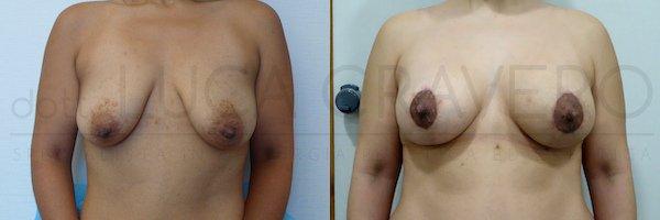 mastopessi con protesi prima e dopo 21.10.18 1