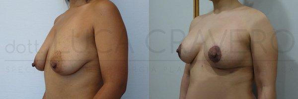 mastopessi con protesi prima e dopo 21.10.18 2